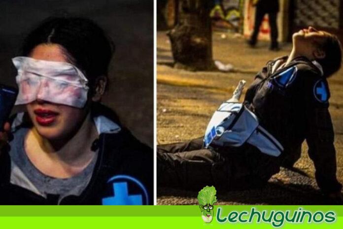 Profesora chilena sufre ceguera temporal por ataque de Carabineros