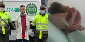 Vea el testimonio de Venezolano apuñalado por un colombiano en Bogotá
